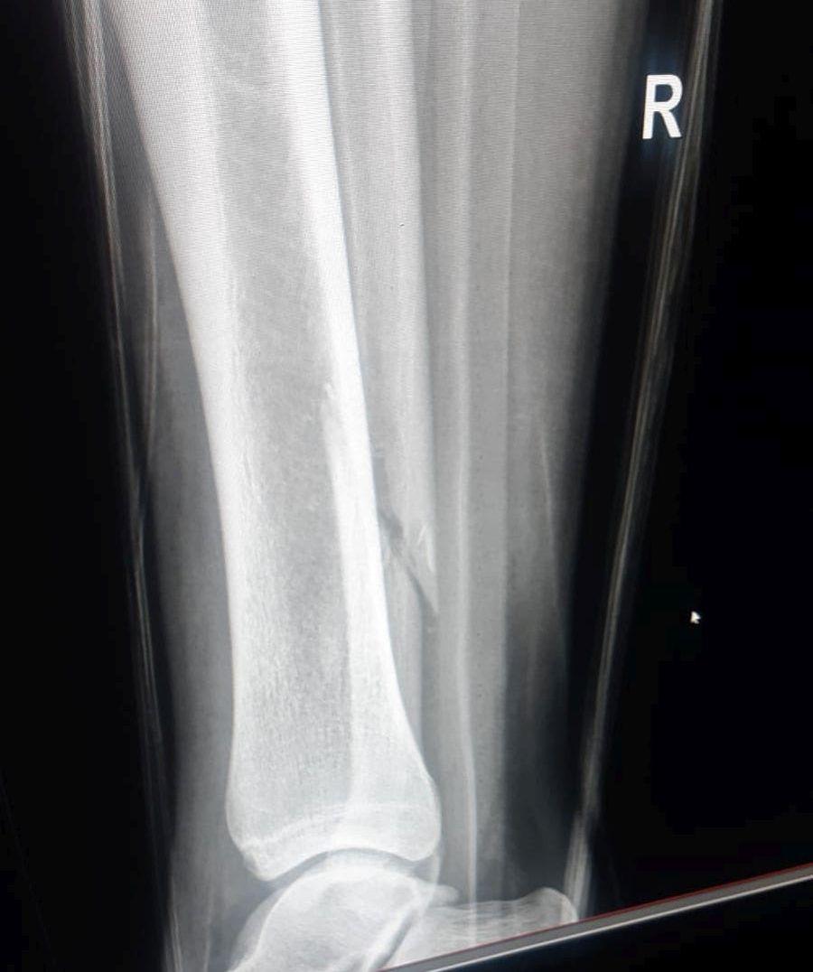 Radiografia lui Koljoc care arată fractura peroneului
