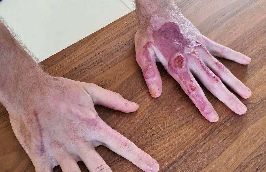 Mâinile lui Romain Grosjean după scoaterea bandajelor