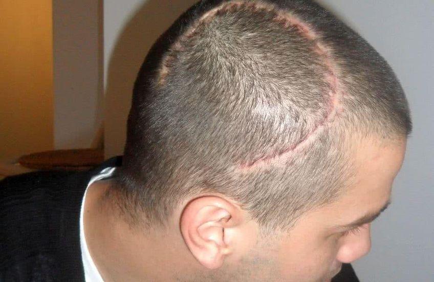 Cristi Chivu a suferit aceeași operație ca Raul Jimenez, pentru fractură craniană.