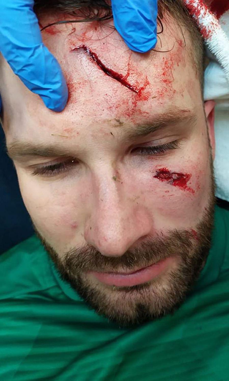 Așa arată accidentarea lui Ondrej Kolar, foto: twitter