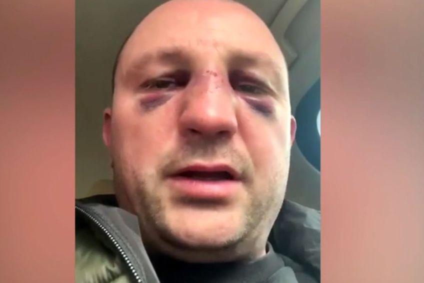 Fostul kickboxer Mihai Oprea a fost bătut de Vitalie Bîrza în plină stradă