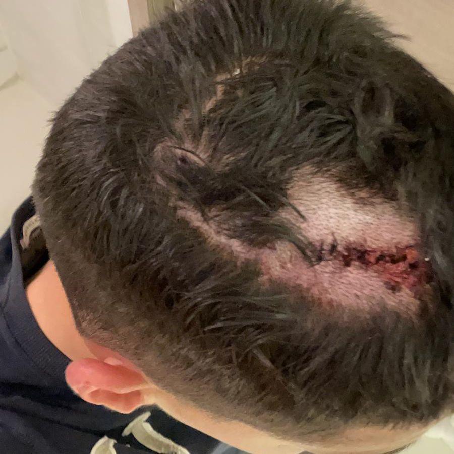 Octavian Vâlceanu, după lovitura primită în meciul cu CFR Cluj